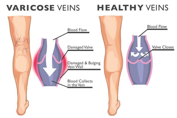 Varicose Veins Condition